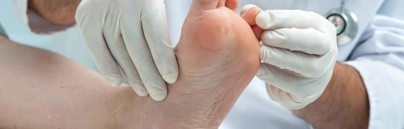 Проблемная диабетическая стопа: основные симптомы и особенности лечения