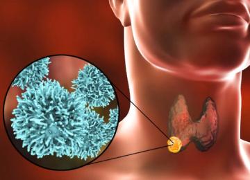 Очевидные признаки рака щитовидной железы