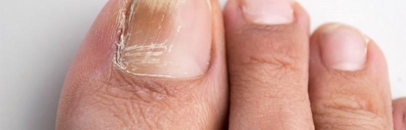 Грибок ногтей: как лечить запущенную болезнь