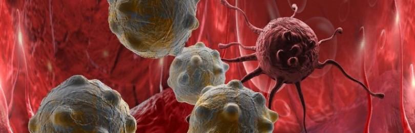 Почему не стоит бояться онкозаболевания