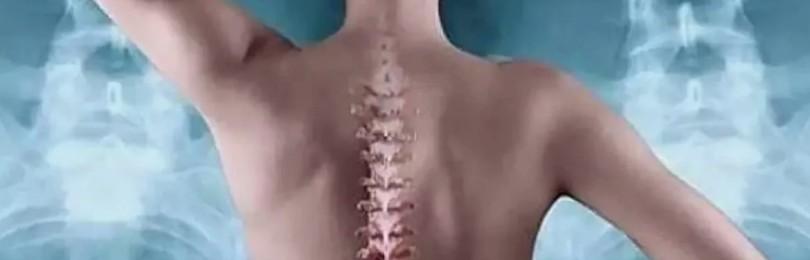 Корсет для спины: чей позвоночник спасет от болезней и боли