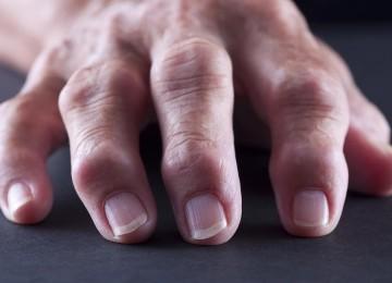Почему возникает артрит суставов: народные методы лечения