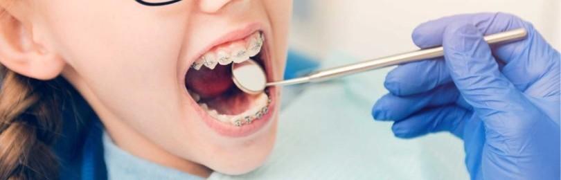Ребенок и ортодонт: когда пора познакомиться?
