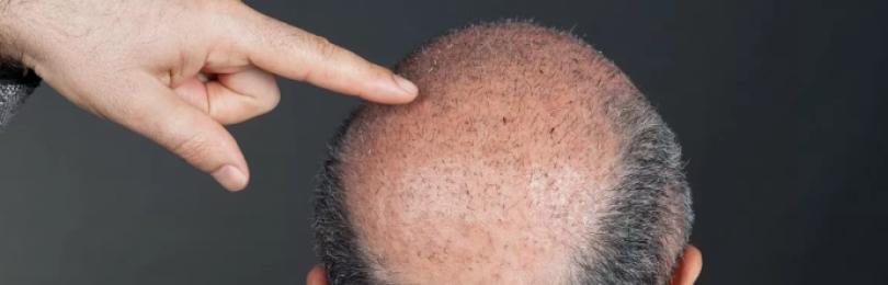 Почему одни мужчины лысеют, а другие — нет?