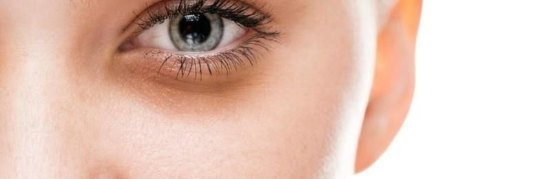 Почему под глазами появляются темные круги