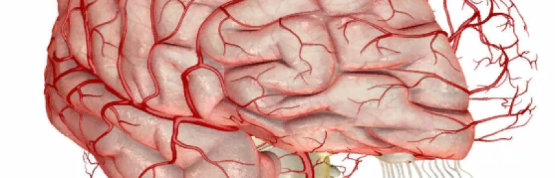 Народная медицина — очищаем сосуды головного мозга