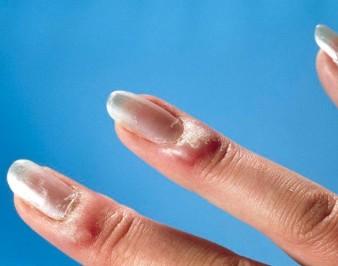 Нарывы на пальцах возле ногтей: признаки и причины