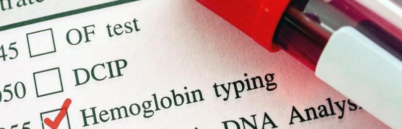 Повышенный гемоглобин: симптомы, методы нормализации
