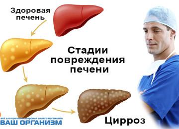 Цирроз печени — описание, причины, симптомы, стадии, лечение