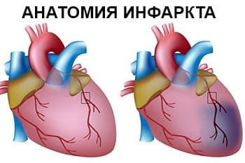 анатомия-инфаркта-сердца