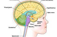 Арахноидит головного мозга — симптомы и причины заболевания. Диагностика, возможно ли лечение?