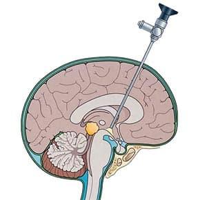 эндоскопия-головного-мозга