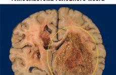 Глиобластома головного мозга: причины, диагностика, лечение