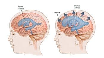 иллюстрация-гидроцефалии
