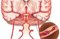 Как пережить инсульт головного мозга? Первые признаки, реабилитация