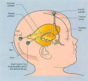 лечение-гидроцефалии-у-детей