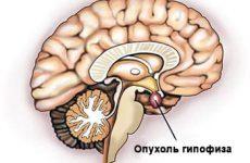 Что такое аденома гипофиза? Классификация, причины, современные методы лечения