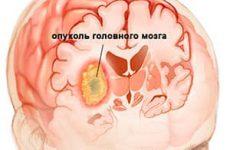 Какие методы лечения доброкачественных опухолей головного мозга существуют в наши дни?