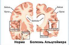 Особенности протекания и лечение болезни Альцгеймера