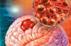 Как не пропустить рак головного мозга не допустив осложнений?