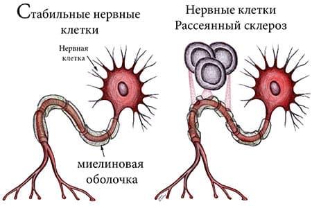рассеянный склероз рисунок клеток