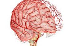 Бережем сосуды головного мозга. Симптомы заболеваний и их лечение