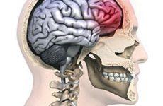 Какие первые симптомы и как лечат сотрясение головного мозга