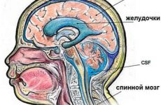 Вентрикуломегалия – прерывание или лечение?