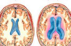 Водянка головного мозга: какие факторы риска и причины болезни? Диагностика и лечение