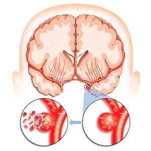 закуроренный-сосуд-голвоного-мозга