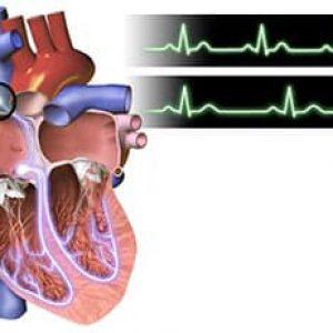 Синусовая тахикардия — когда частит сердце
