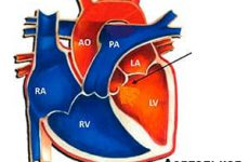Что такое аортальная недостаточность: степени, причины появления, диагностика