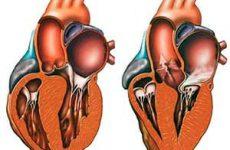 Гипертрофическая кардиомиопатия: классификация, лечение