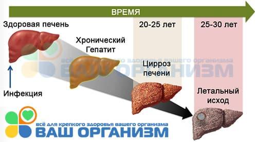 Схема последствий хронического гепатита