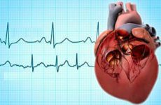 Мерцательная аритмия — особенности диагностики и лечения