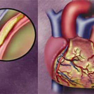 Методы лечения кардиосклероза и восстановление после блезни