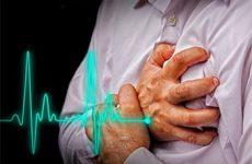 Ишемическая болезнь сердца:  причины, симптомы и лечение