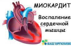 Что такое миокардит сердца? Формы, симптомы, способы лечения
