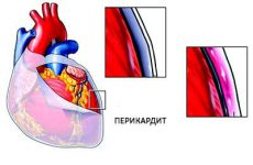 Лечение перикардита сердца зависит от многих факторов