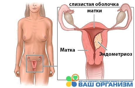 эндометриоз матки рисунок