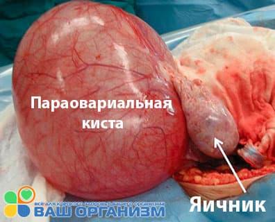 На фото параовариальная киста яичника