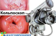 Тонкости проведения операции кольпоскопии шейки матки