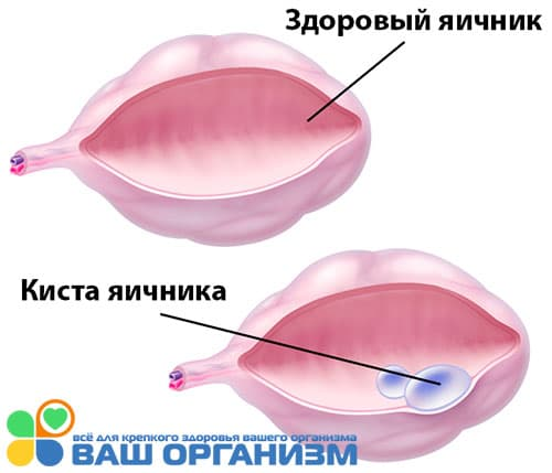 рисунок кииста яичника