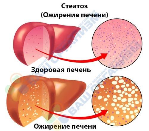 стеатоз ожирение печени