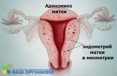 Что такое аденомиоз матки: как лечить и какие симптомы у заболевания?