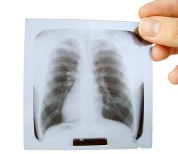 Диагностика плеврита легких