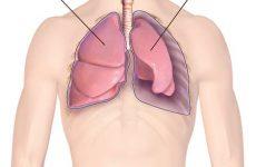 Пневмоторакс легкого что это? Симптомы и лечение
