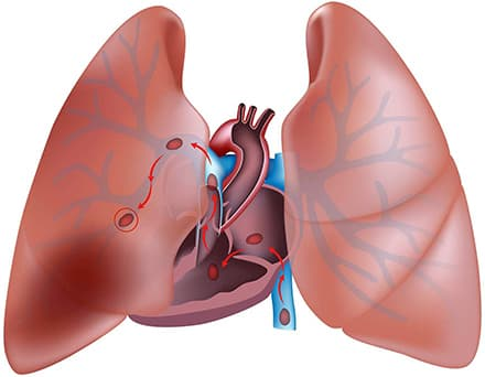 Тромбоэмболия легочной артерии рисунок