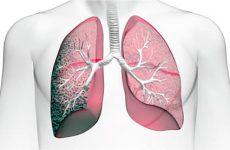 Что такое пневмофиброз легких и как его вылечить?