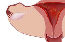 Воспаление матки — какие бывают симптомы и как лечить заболевание?